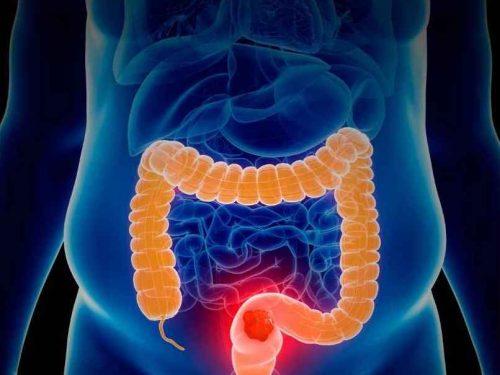 Hidroterapia de colon en castelldefels pure corpore